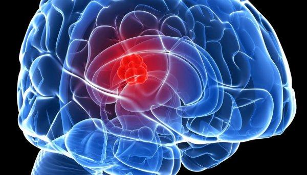 Ученые нашли способ защиты от болезни Паркинсона