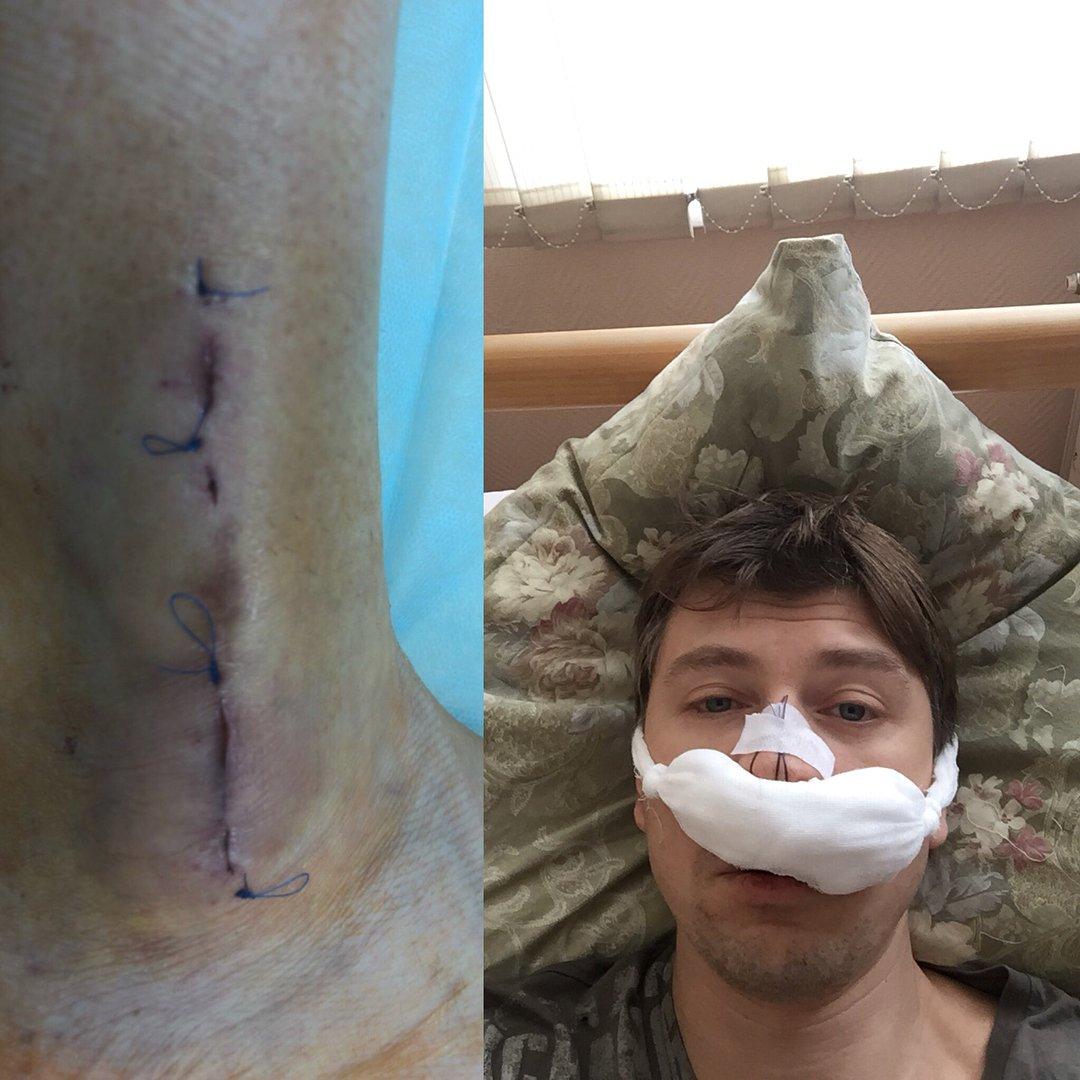 Алексей Ягудин напугал фанатов фотографиями разбитого носа ишвов