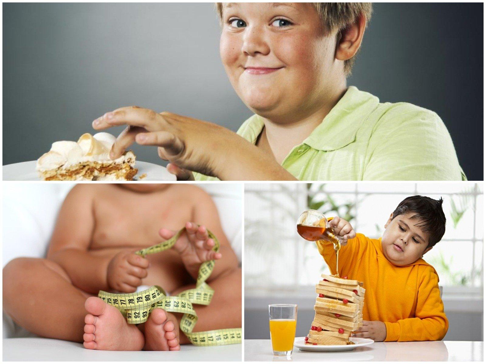 Ожирение у детей в картинках