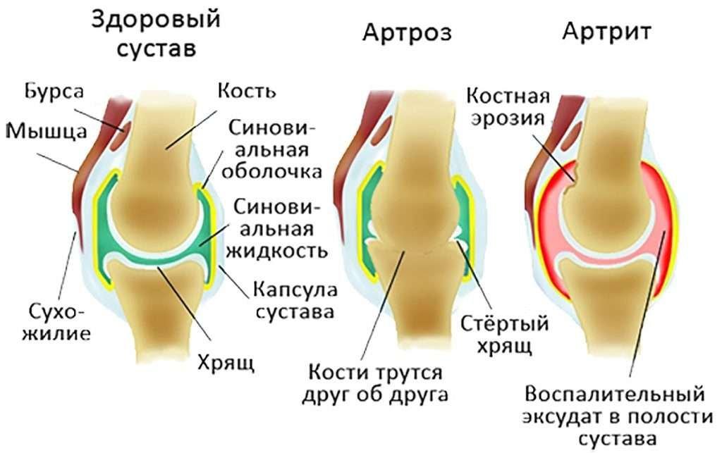 температура при артрозе плечевого сустава каком