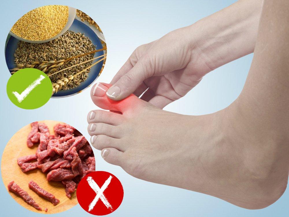 Подагра суставов диета